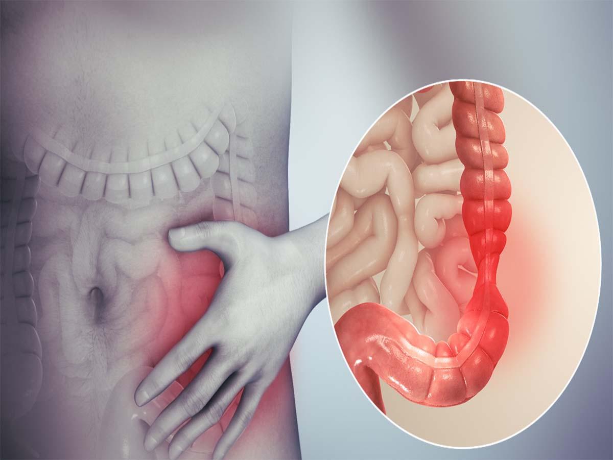 5 dấu hiệu nhận biết điển hình viêm đại tràng