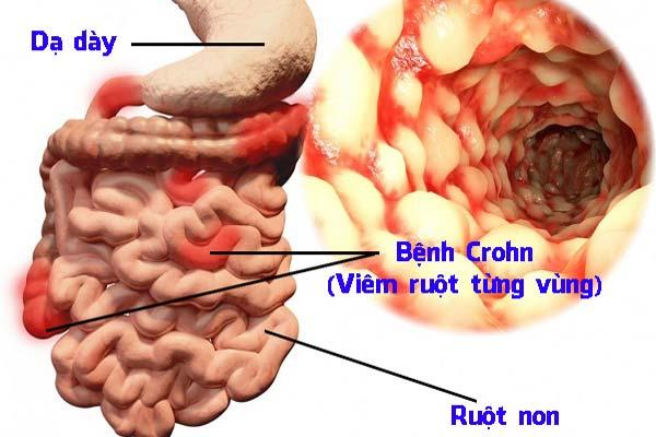 Bệnh Crohn là gì? Cách ăn uống phòng tránh và chữa trị bệnh!!!