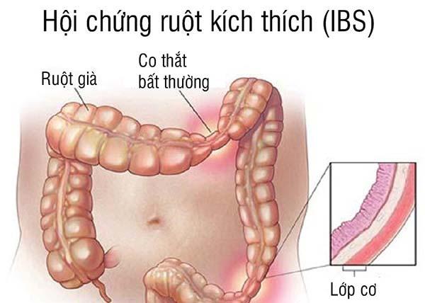 Hội chứng ruột kích thích là bệnh gì? Cách ăn uống và chữa trị bệnh hiệu quả