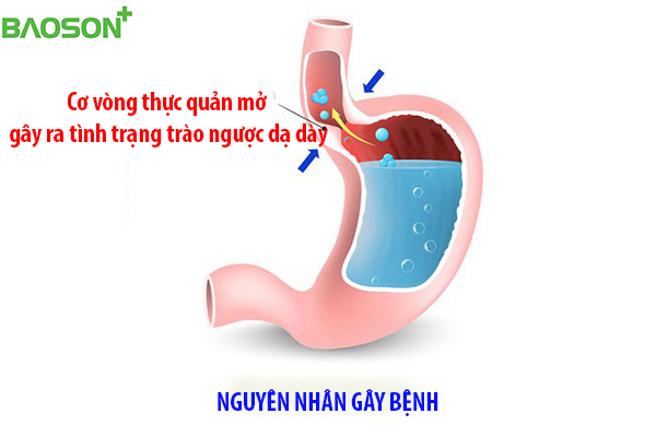 Nguyên nhân gây bệnh trào ngược dạ dày thực quản